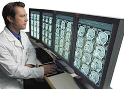 PACS:医療用画像管理システム